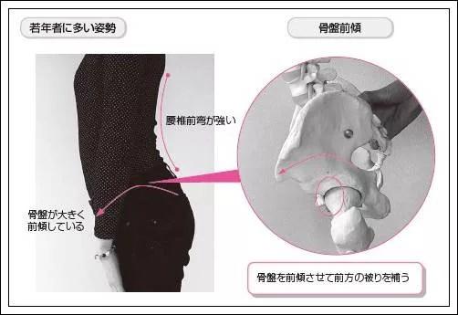 臼蓋形成不全の患者に多い姿勢