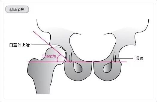 大腿骨のCE角とSharp角2