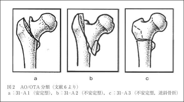大腿骨転子部骨折分類AO分類