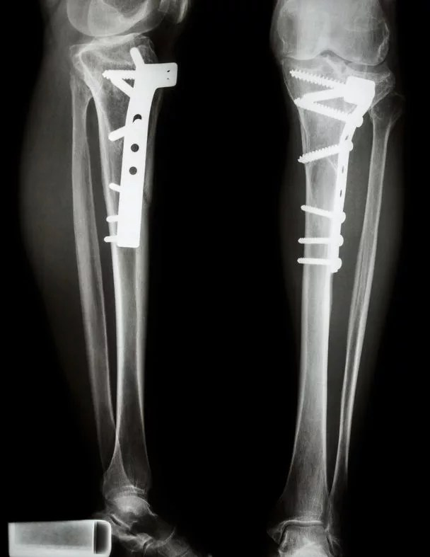 脛骨近位端手術プレート固定