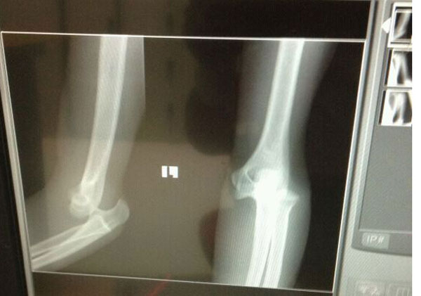 my elbow completely dislocated