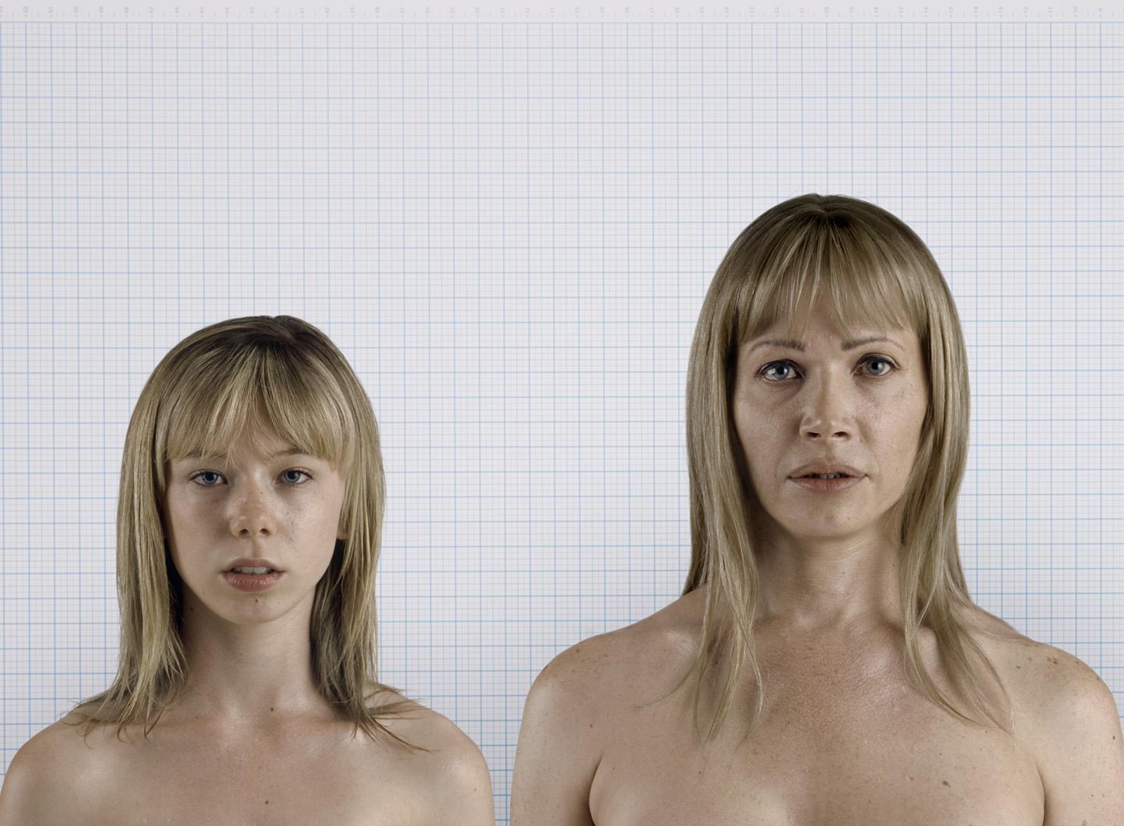 breast budding female puberty
