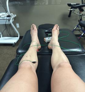 Dealing with Shin Splints