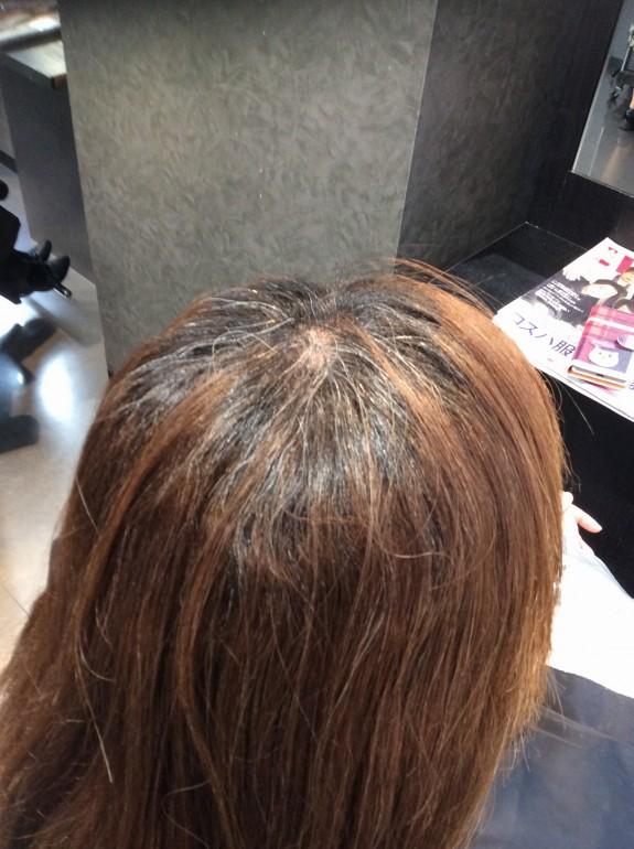 縮毛矯正施術前のビフォーの画像です。斜め後ろ上の方からツムジ辺りのアップ写真を撮りました。白髪毛を明るくブリーチ状態まで持って行って染めています。癖はあまり強くないようですが白毛、黒毛、明るい茶色の入り混じった髪の毛です。パサパサ感がよ〜く伝わってくる画像です。