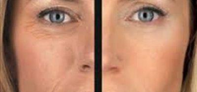 Fotos antes y después | Radiofrecuencia facial