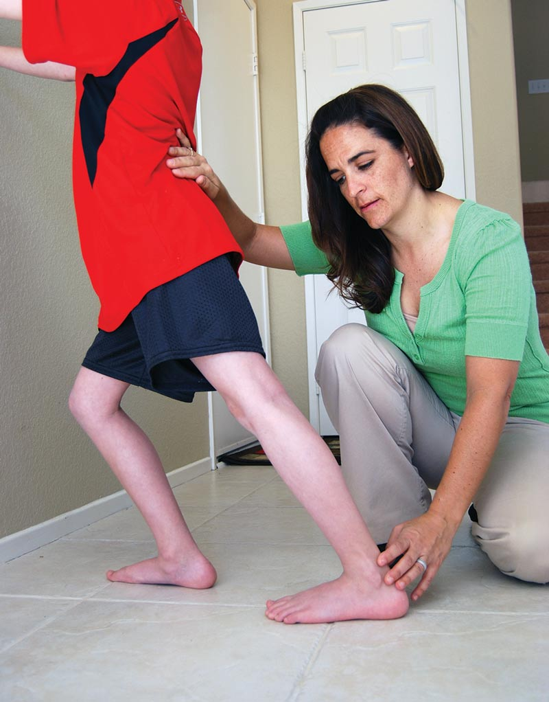 Duchenne Muscular Dystrophy Symptoms Toddlers Update Orthotic Care And Physical Therapy For Dmd Lerpediatrics