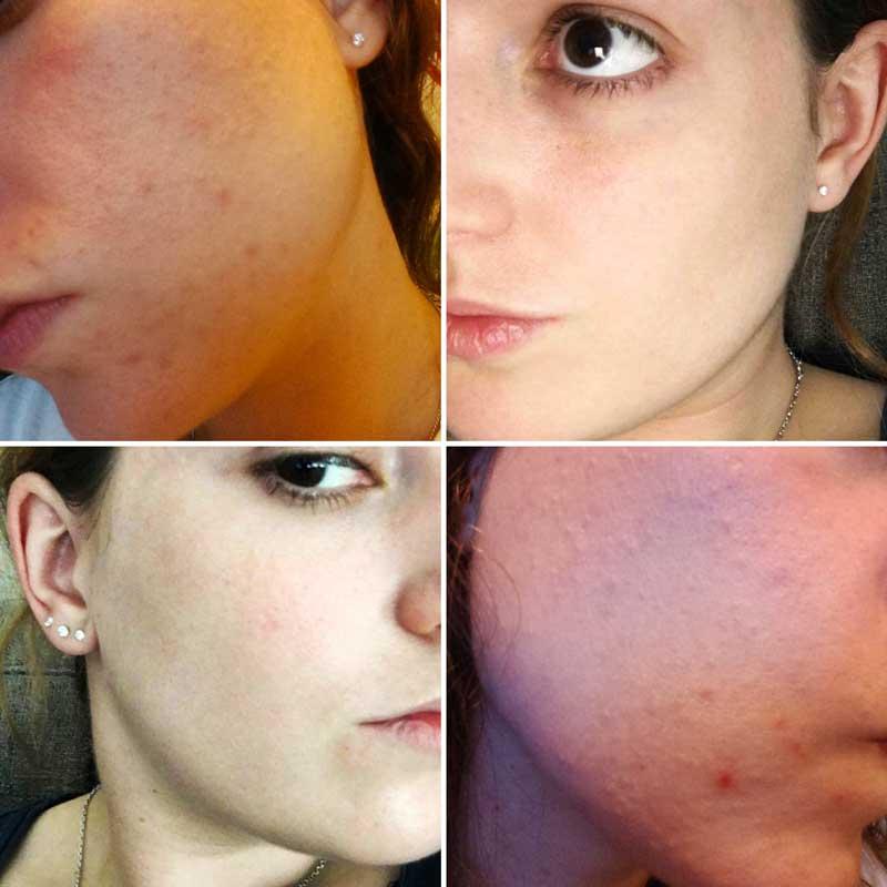 avant-après 1 an curacné