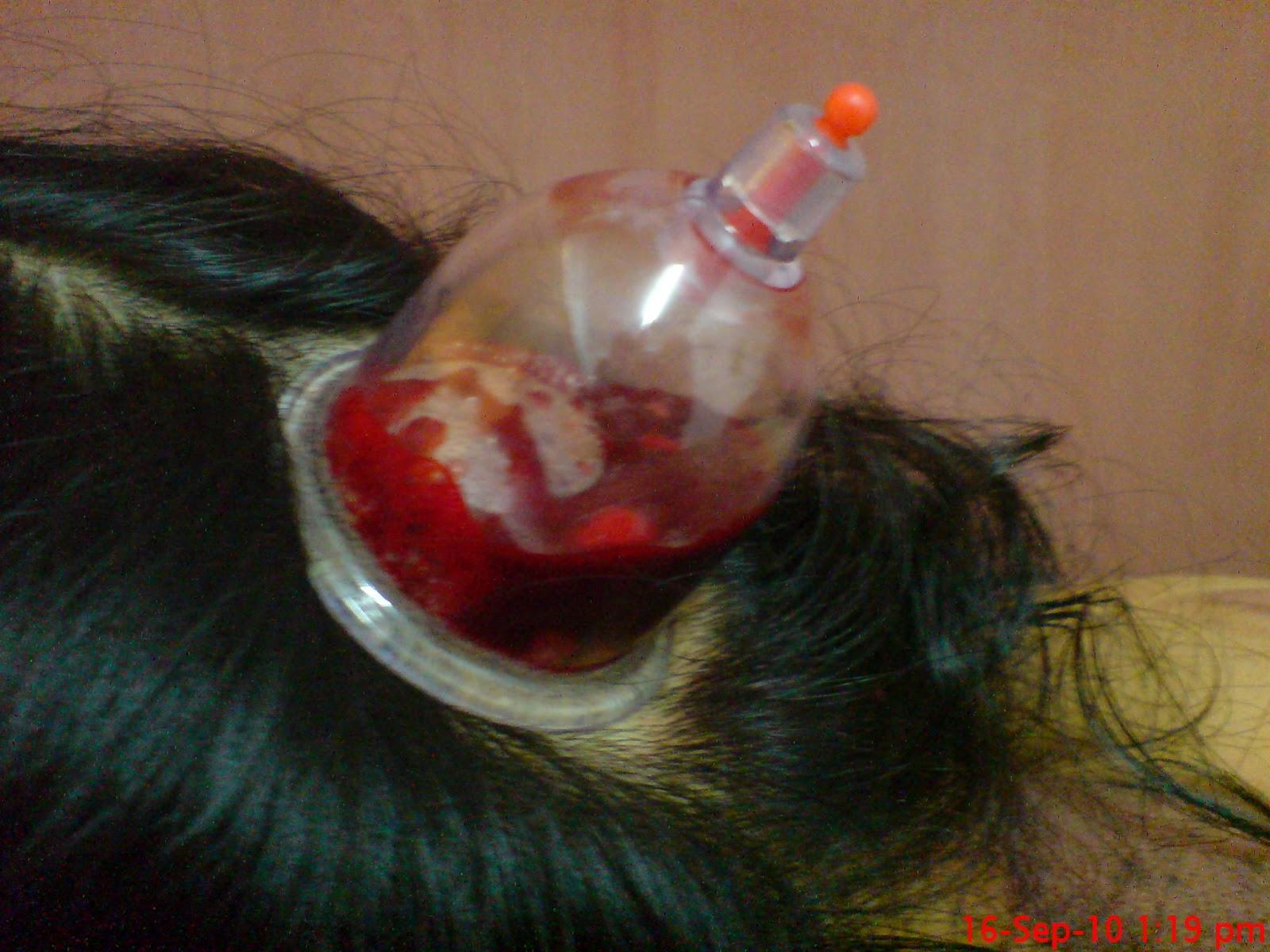 Belakang Sakit Kepala Sebelah Kiri Sakit Kepala Sebelah Kan