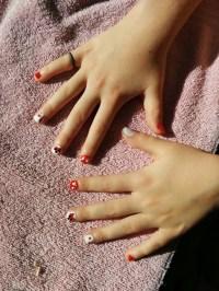 Fox fingernails