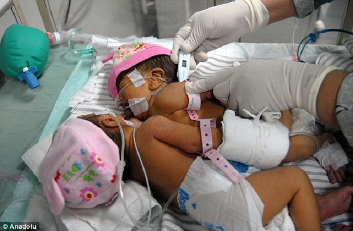 Newborn Babies In Icu Mom Gives Birth To Conjoined Twin Girls Who Share One