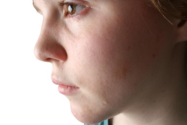 気になる涙目を治すための5つの方法