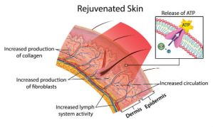 Can a Photofacial Really Build Collagen & Reduce Wrinkles?