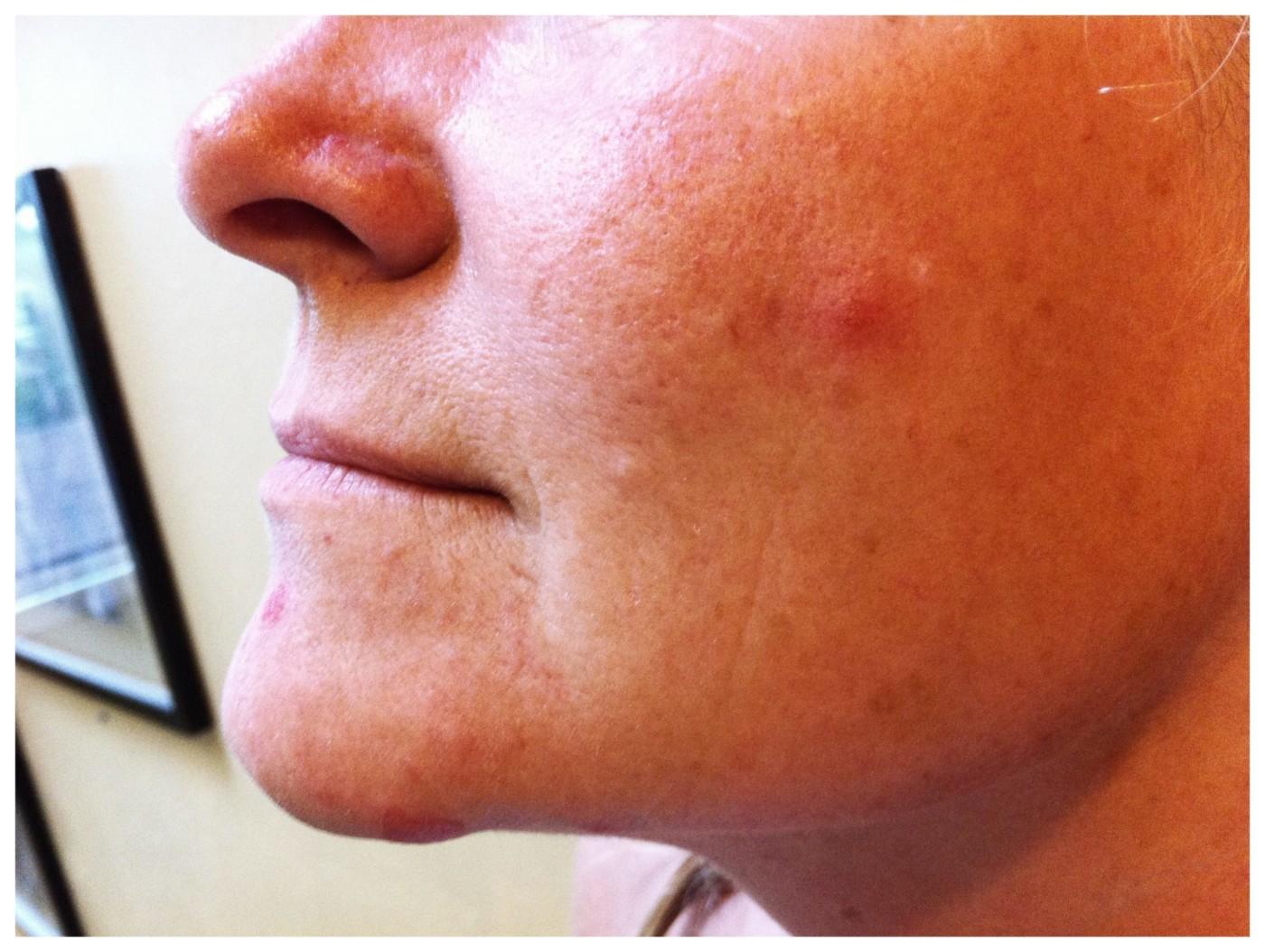 lutter contre l'acné solaire homme