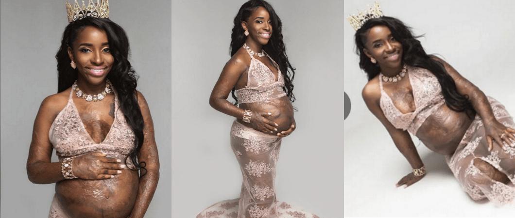 This Burn Survivor's Pregnancy Photoshoot Is Beyond Inspirational