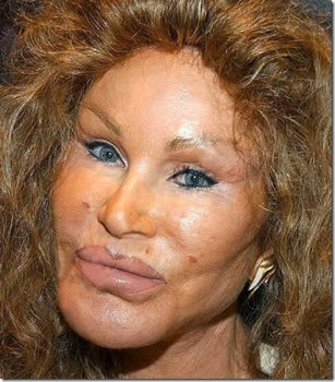 Jocelyn-Wildenstein2