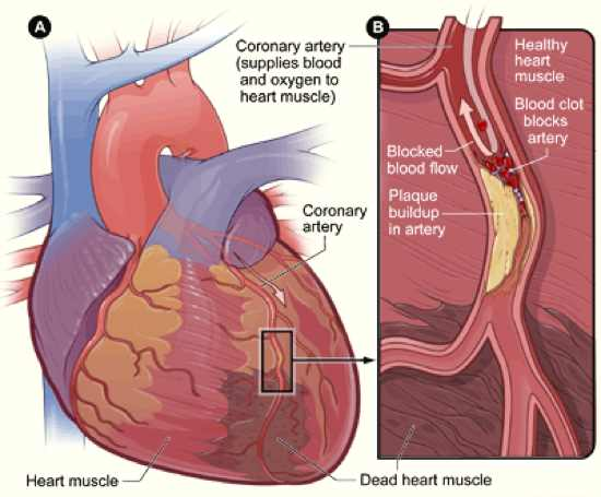 Heart Coronary Artery