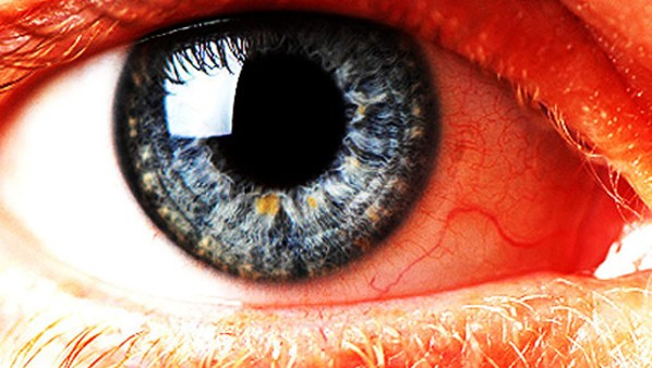 Eye 620X350