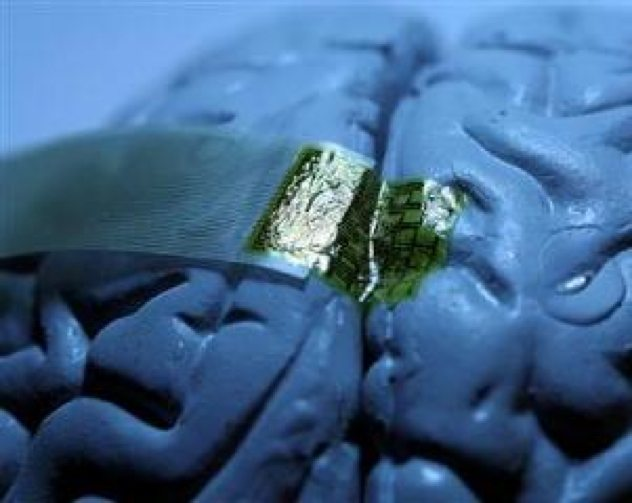 Brain-Neural-Implant