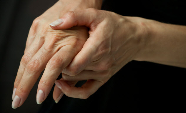 6-arthritis_000012913558_Small
