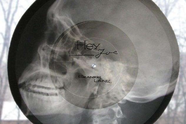 x-ray-record