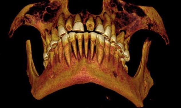 6-mummys-teeth-sinus-infection