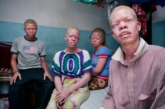 Killing of albino's in East Africa