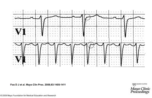 Supraventricular Tachycardia (SVT) \u2022 LITFL \u2022 ECG Library Diagnosis