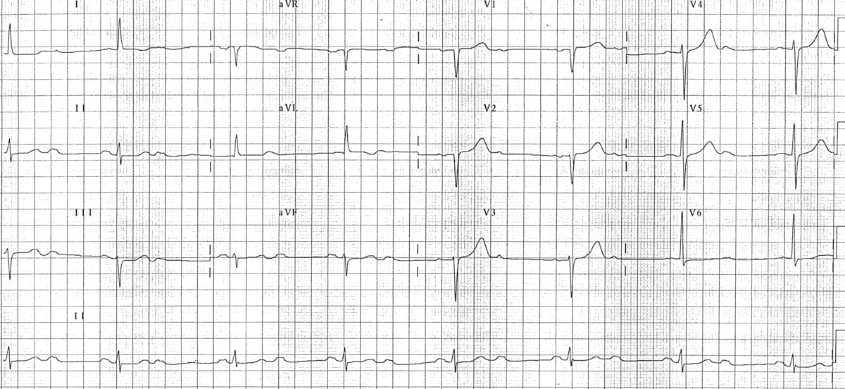 AV block 2nd degree, \u201cfixed ratio\u201d blocks \u2022 LITFL \u2022 ECG Library