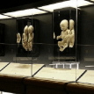 Incredible display of miscarried babies shows the humanity of preborn children
