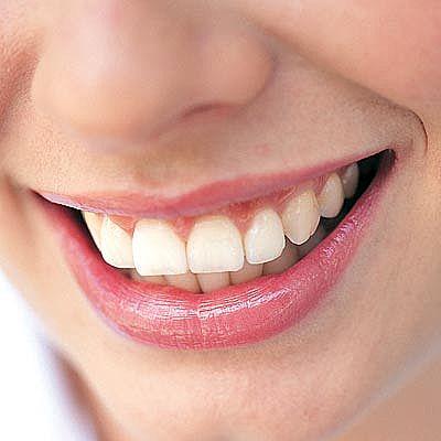 歯石を取りに行った結果wwwww