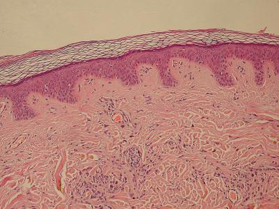 皮膚の保護促す化合物=アトピー治療薬に期待―京大