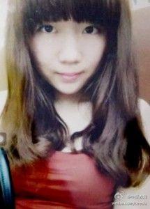 「どうしてこんなことに」 ニキビ治療で顔が猪八戒になってしまった少女(19)、夜中にそっと泣く