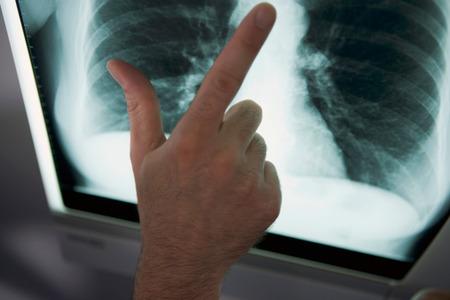 肺破れったったwwwwwwwwww