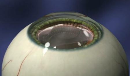 注目のレーシックに代わる手術 「ICL(眼内コンタクト)」