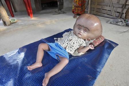 【閲覧注意】 AFP「水頭症で頭囲94cmだったルーナちゃん(1)、手術成功し退院へ。なおAFPの手柄です」