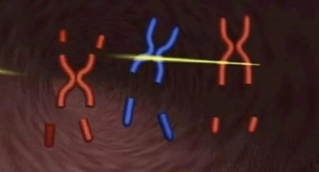 【特徴】 ダウン症って染色体の数が普通の人と違うんだよな……