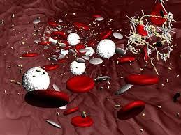 健康診断で白血球が多いって言われたんだがwwwww