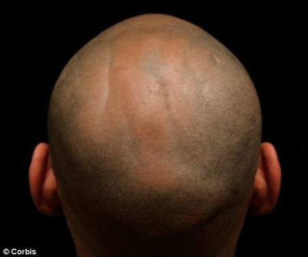 40代でハゲの男性は、前立腺がんになる可能性が高くなります。 (´・ω・`)