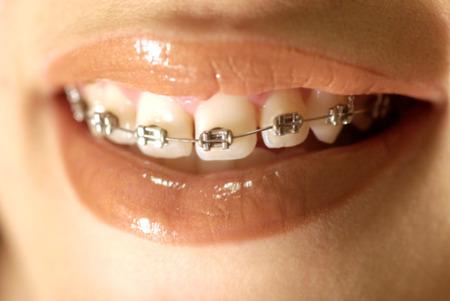 【歯列矯正】 歯の矯正もうすぐ終わるんだ(´・ω・`)