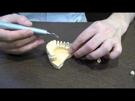 歯並び悪いやつwwwwwwwwwwwww