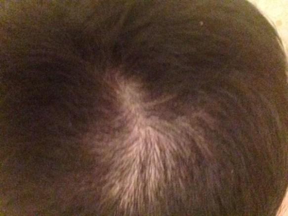 【悲報】セルフで髪切ったら切りすぎてハゲみたいになったんだが