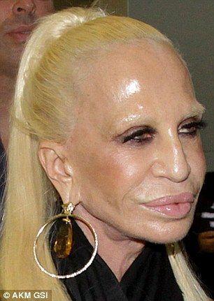 ボトックス注射の功罪!? 20年近く美容手術を繰り返してきた著名デザイナーの顔写真に衝撃走る(写真あり)