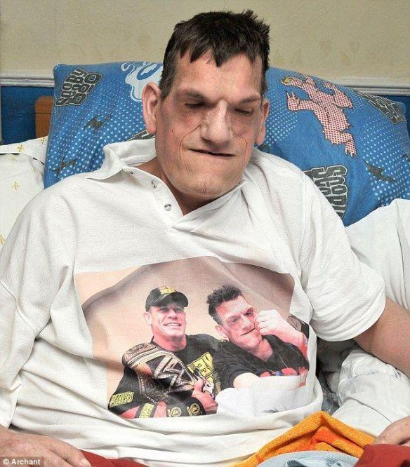 2メートル13センチの大男、24歳の若さで亡くなる…プロテウス症候群、水頭症、巨人症を併発(画像あり)