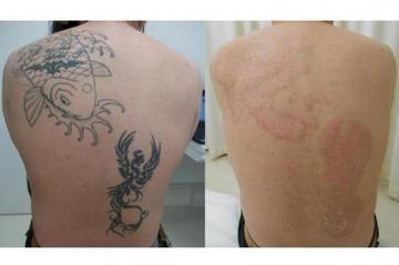 タトゥー除去をめぐるトラブルが相次ぐ…医師「死ぬぐらいの痛み覚悟して」「一番いいのはタトゥーをいれないこと」