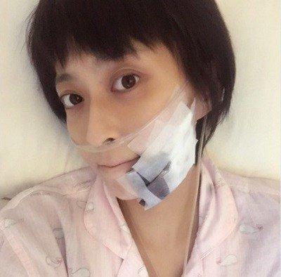 小林麻央顎 皮膚癌2