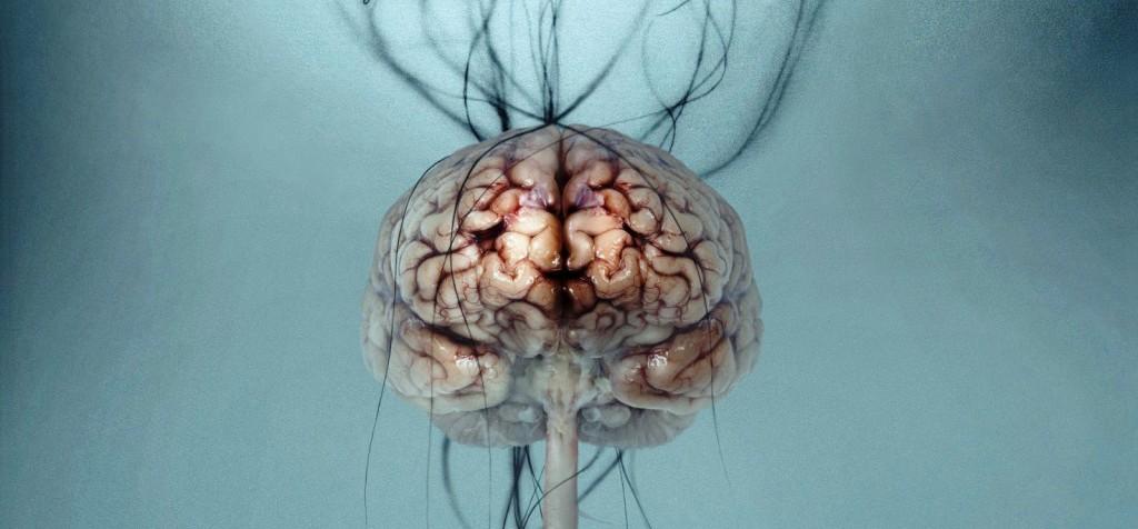 Animal Desktop Wallpaper The Brain Down Syndrome And Antibiotics Lunatic