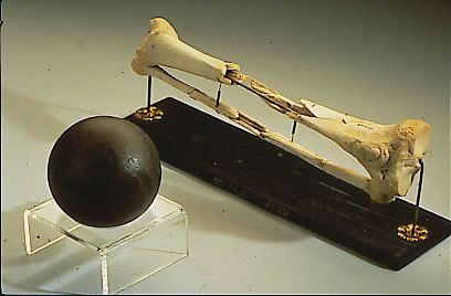 General Sickles' leg, and cannonball
