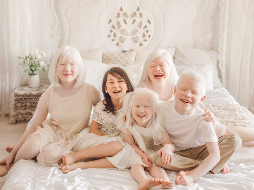 Life with four children with albinism has been quite the adventure
