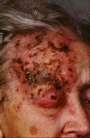 Are These Signs OfHerpes Zoster Ophthalmicus? 3