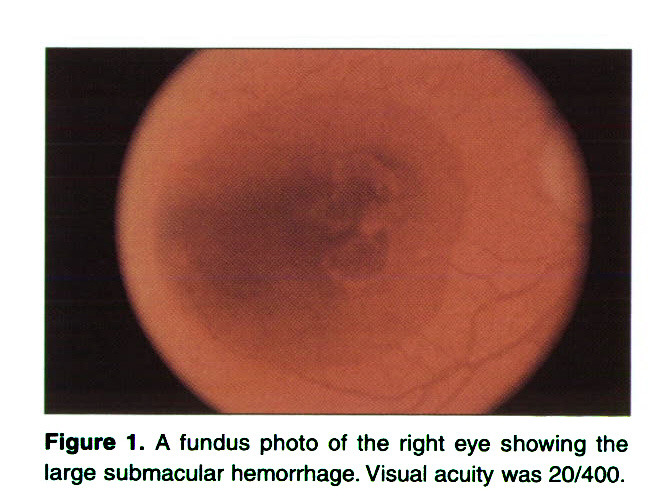 Spontaneous Resolution of Submacular Hemorrhage With Marked Visual